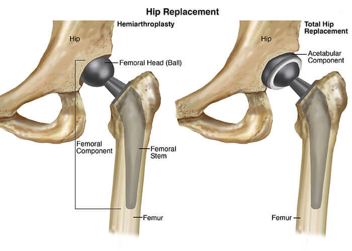 Hip-Replacement imotion physical therapy