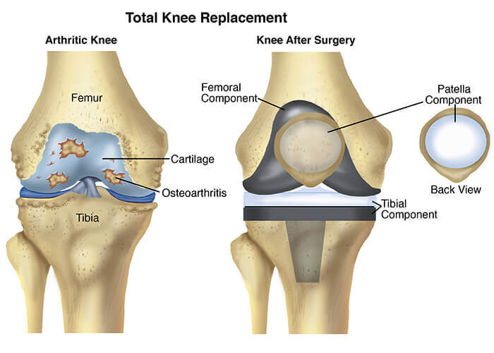Knee-Replacement imotion physical therapy