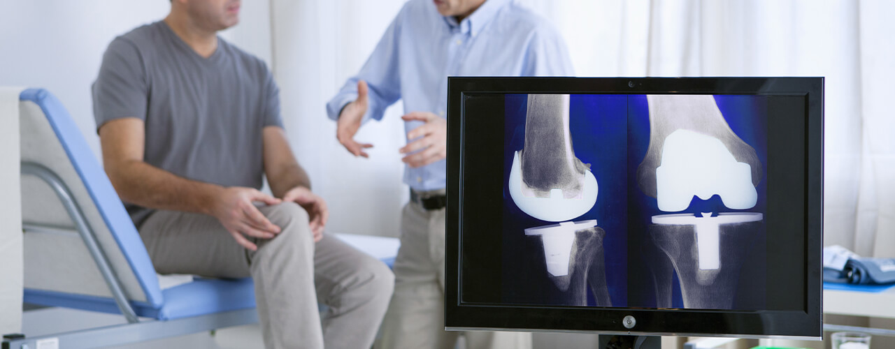 Knee Replacement Rehab Fremont, Los Gatos & San Jose, CA